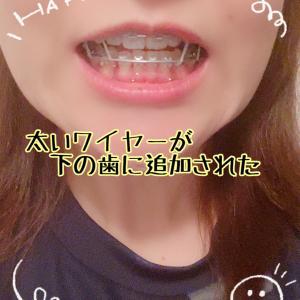 術後 80日と矯正歯科③