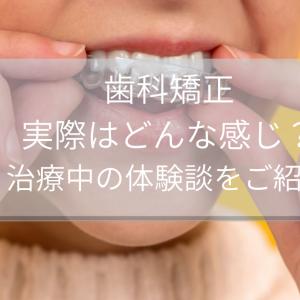 歯科矯正って実際はどんな感じ?治療中の私の体験談をご紹介
