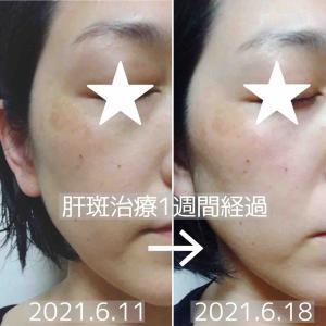 美容皮膚科で肝斑治療② 途中経過