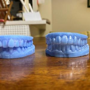 歯並び「キレイライン矯正」でコンプレックス解消
