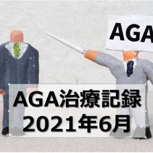 【AGA治療】ミノキシジルタブレット/フィナステリド 併用記録【2021年6月】