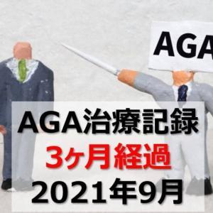 【AGA治療】ミノキシジルタブレット/フィナステリド 併用記録【3ヶ月経過】