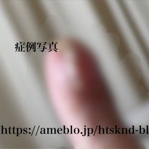 ついーと 指が痛い 症例写真 レックリングハウゼン