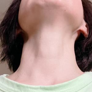 自慢できることをあげてみる。首シワなし・BMI 20