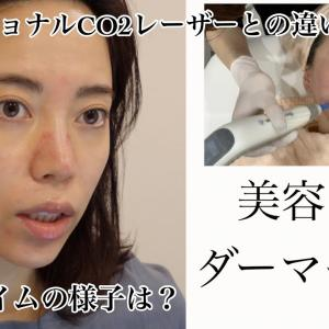 【美容医療】毛穴 ニキビ跡改善に効くダーマペン【施術の様子・ダウンタイムの経過】