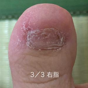 足の指と足の裏