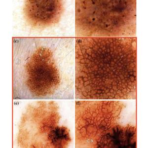 基底細胞癌のダーモスコピー②