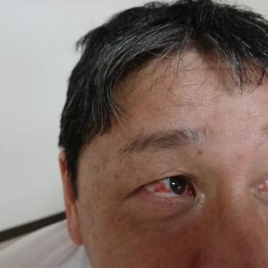 目が真っ赤 (^o^;)