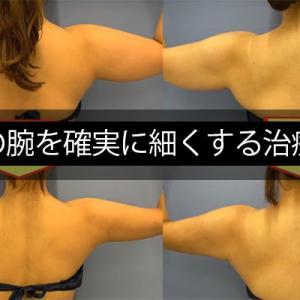 【本気で二の腕痩せ】必ず痩せる!たるんだ二の腕を即効で確実に細くする治療方法!