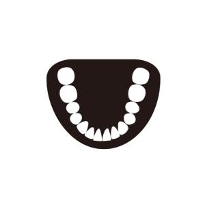 【大人の歯列矯正】下の歯ワイヤー装着、1ヵ月半後の経過写真