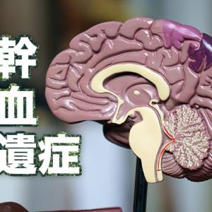 脳幹出血後遺症の5つの症状を解説