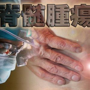 脊髄腫瘍の髄内腫瘍と髄外腫瘍について