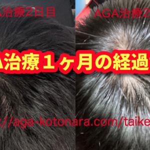 AGA治療開始から1ヶ月経過報告