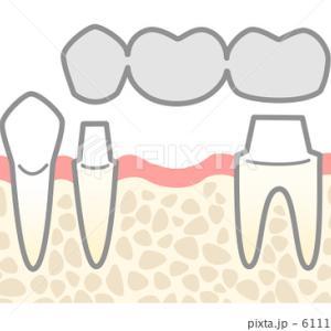 歯の嚙み砕くパワーは体重に匹敵する!女性に八重歯が多い理由は?
