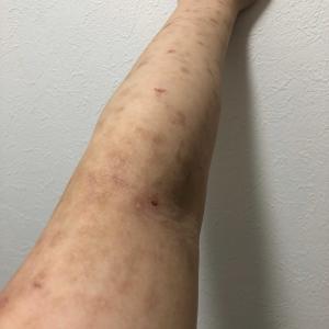 現在のアトピー性皮膚炎(写真あり)