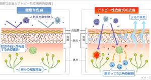 アレルゲンに負けない皮膚のバリア機能を強化する9つの方法!