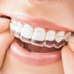 25年間悩み続けた歯並びをインビザラインで矯正した話し☺︎【決断編】