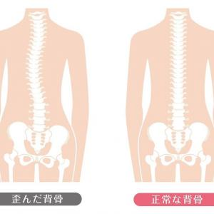 【体験談11】背骨が歪んで身長が低くなっていた