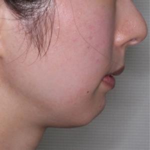 ヒアルロン酸で顎を出す