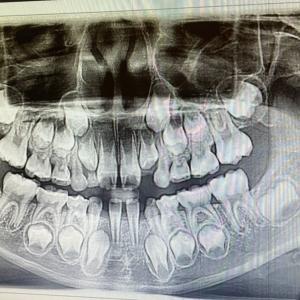 知っておけばよかった。。。アメリカの歯医者事情