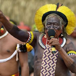 ブラジル先住民指導者ラオーニ、集中治療室に入院(7月20日)