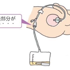 在宅での排尿管理
