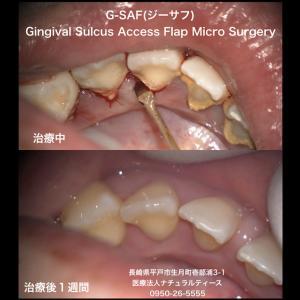 歯周病でお悩みの方。G-SAF(ジーサフ)という治療法。臨床応用顕微鏡歯科学会所属の歯医者さんに