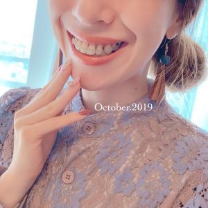 大人歯科矯正記録(17)2019年10月