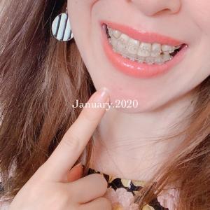 大人歯科矯正記録(20)2020年1月