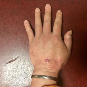 猫に噛まれた手、その後(^o^);