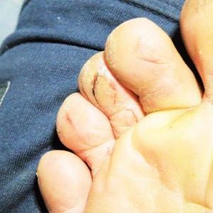 足の指の裂傷