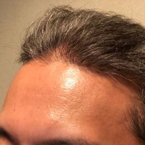 頭皮に優しい白髪染め