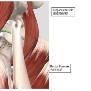 関節外病変に対する股関節鏡視下手術   Hip arthroscopy for extra-articular pathologies