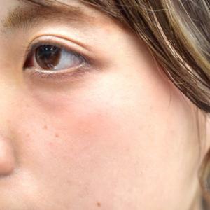 目の下のたるみ&くぼみの予防してますか?