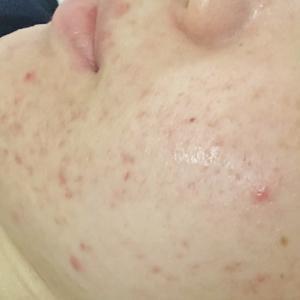夏のニキビ肌には、酸化皮脂をケアする、夏用アレンジのハーブピーリングコース♬