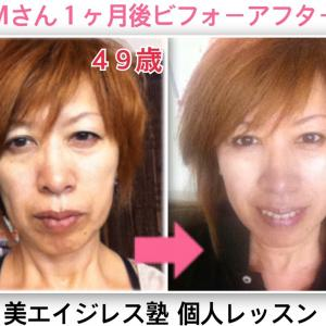 美しい人がプチ整形や美容整形のやり過ぎで不自然な顔になるのはもったいない。