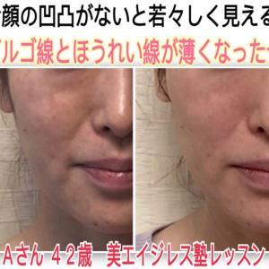 ゴルゴ線ほうれい線、顔の凹凸の影がなくなると若く見えるマジック☆Aさん42歳ビフォーアフタ体験談