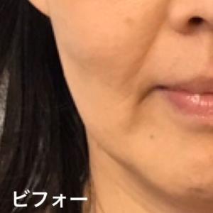 プチ整形せずに顔のたるみを改善する方法は?