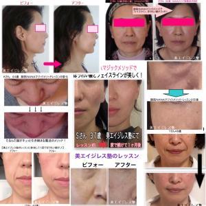 若い頃の肌細胞を培養して細胞注射を顔に定期的にしても顔がたるむの?