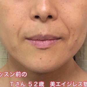 東京グループレッスンが終わりました☆ほうれい線が消えた?!