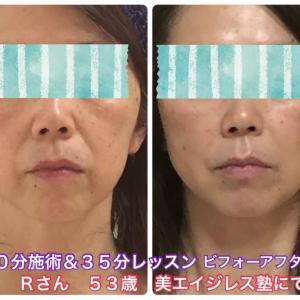 美容整形で切らずにナチュラルに顔のたるみを改善できるメソッド!Rさん53歳ビフォーアフター体験談