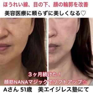 顔の筋トレメソッドを始めて3ヶ月後に見違えるほどのAさん51歳のビフォーアフター美エイジレス塾