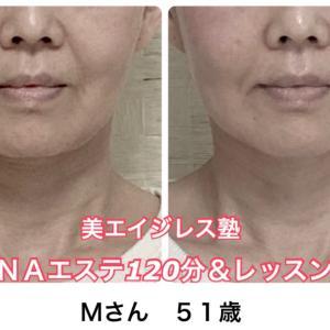 ブルドッグ顔になりやすい頬のたるみを改善する顔の筋トレ法の施術&レッスンMさん51歳の体験談