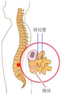 脊柱管狭窄症に対するピラティスエクササイズ