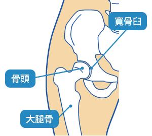 股関節インピンジメント症候群に対するピラティスエクササイズ