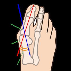 外反母趾に対するピラティスエクササイズ