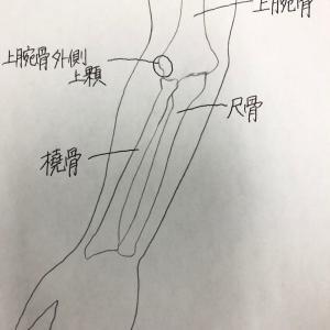 上腕骨外側上顆炎に対するピラティスエクササイズ
