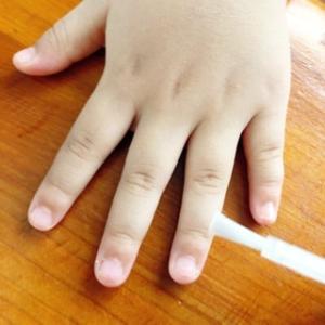 爪を噛む娘に…