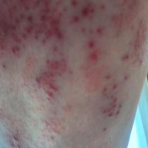 現在の帯状疱疹