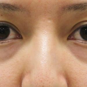 ★170 30歳女性 経結膜脱脂術+眼窩脂肪注入